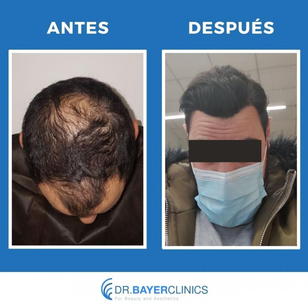 fotos de antes y después del trasplante de cabello
