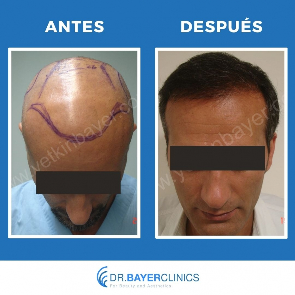 fue trasplante de cabello antes y después