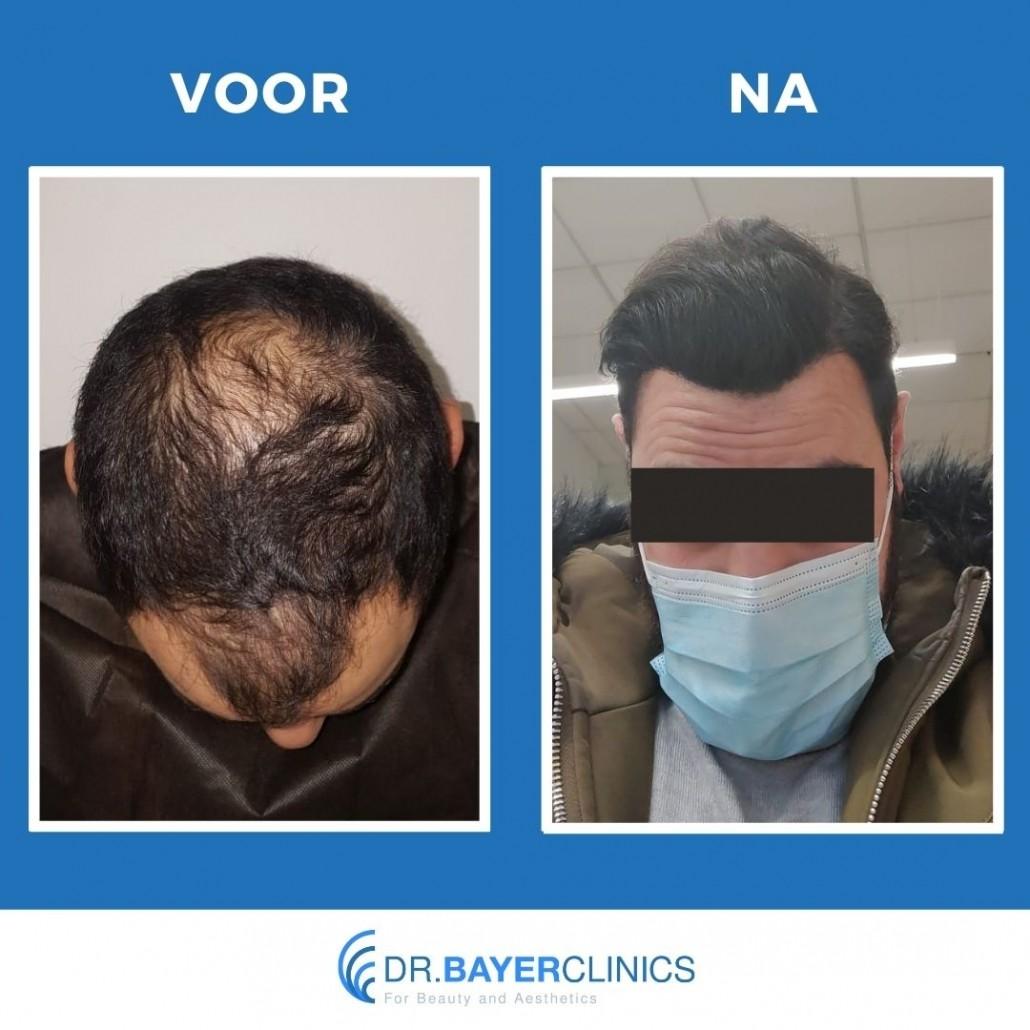 haartransplantatie turkije voor en na 4001