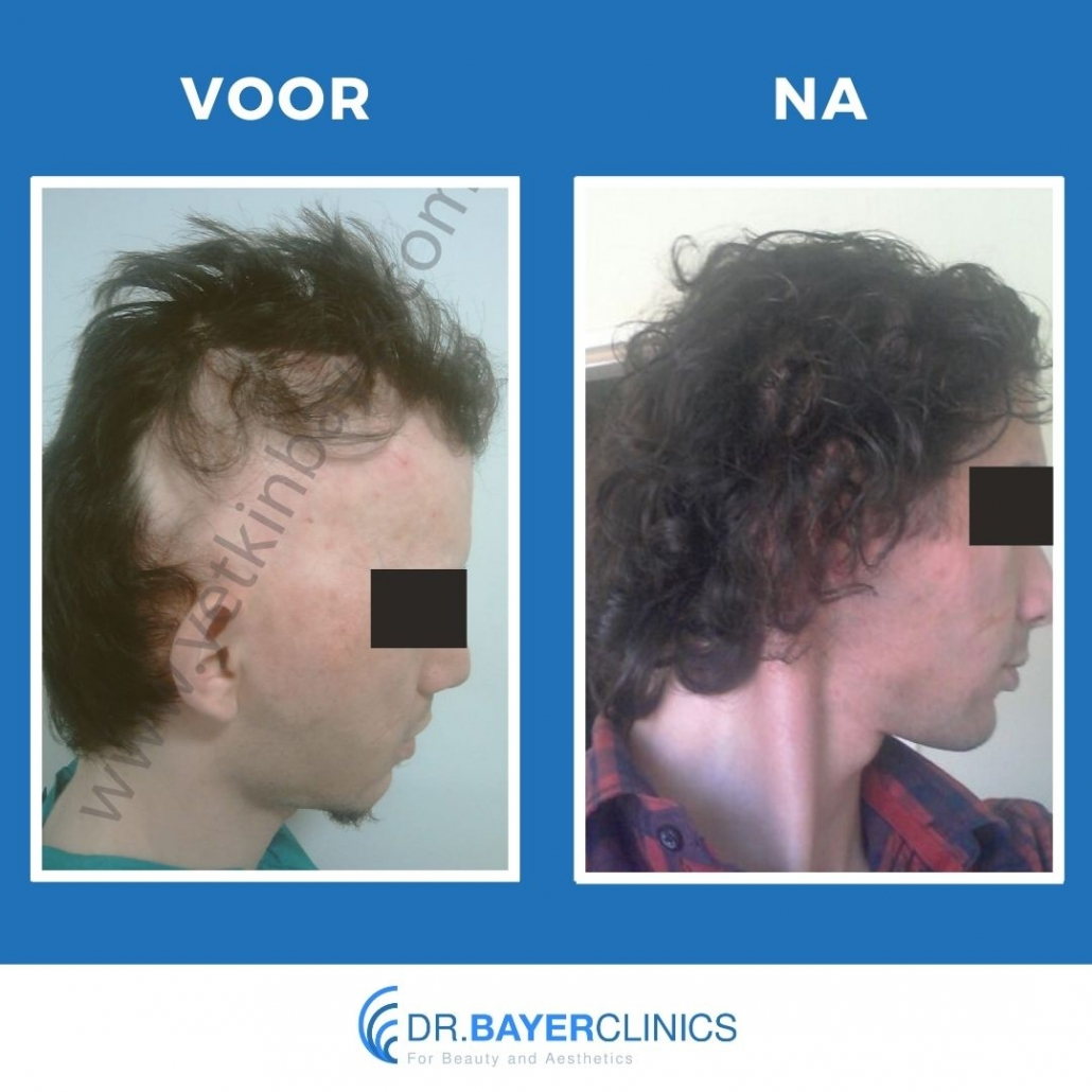 haartransplantatie turkije voor en na 4200