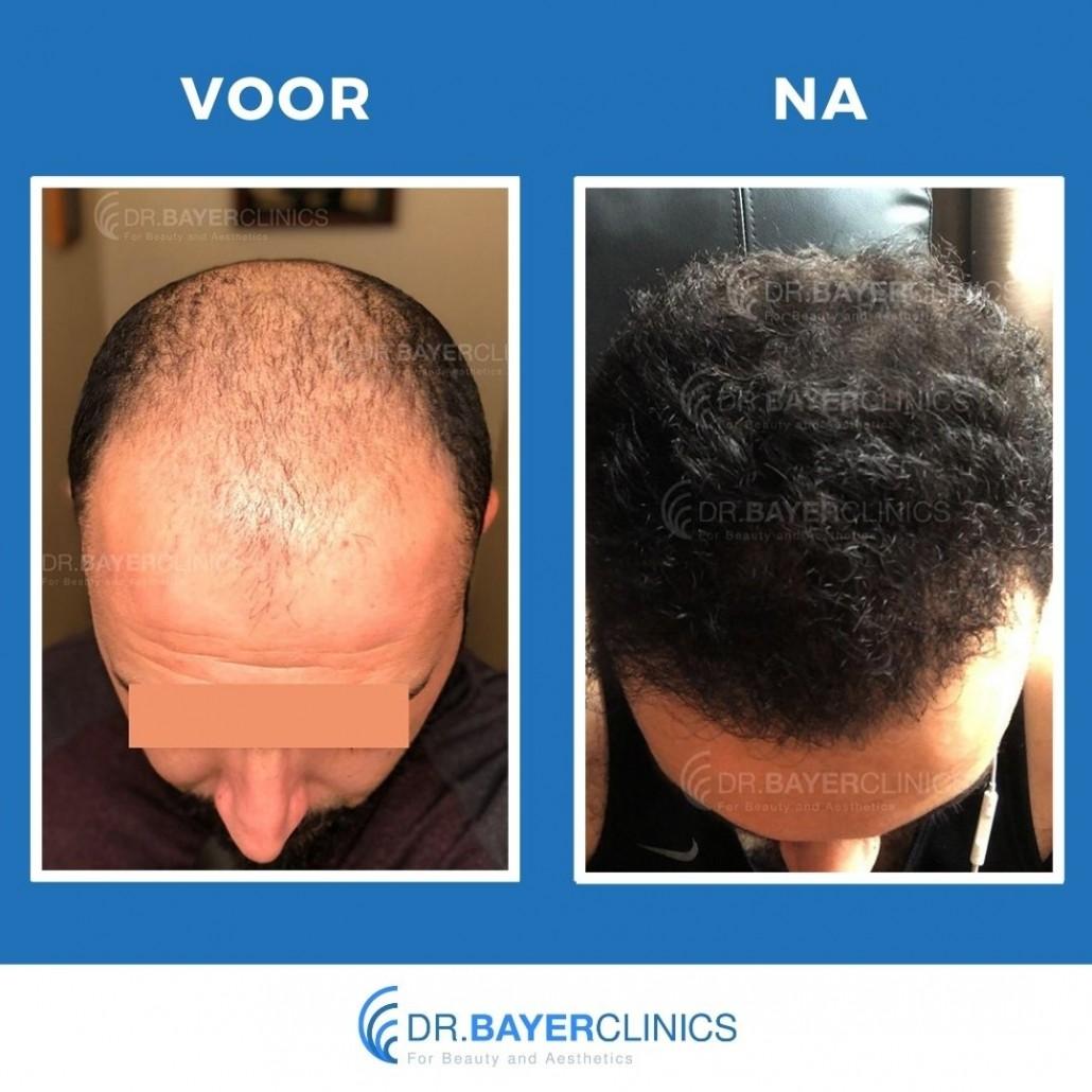 haartransplantatie turkije voor en na fue