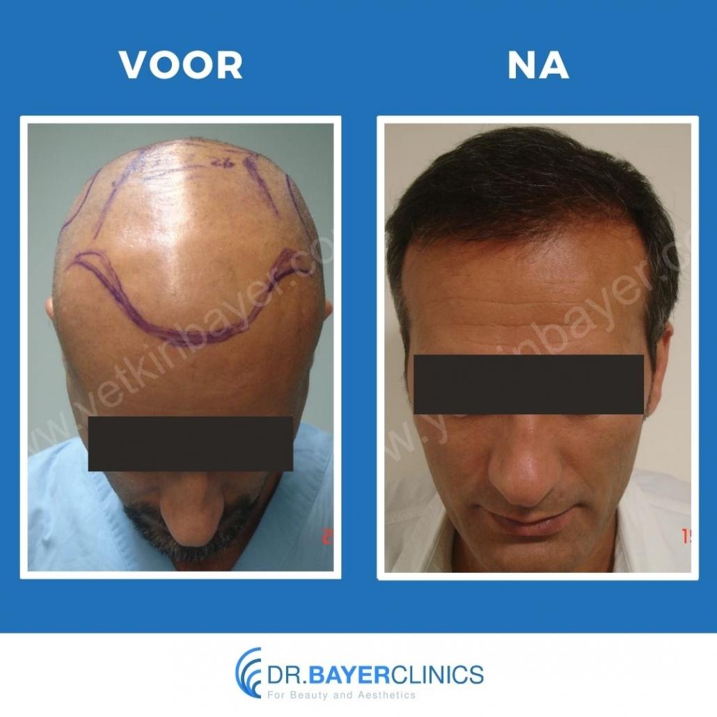 haartransplantatie voor en na fotos
