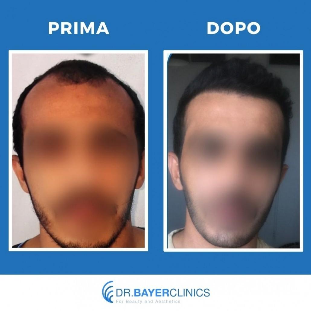 Trapianto capelli in Turchia 10