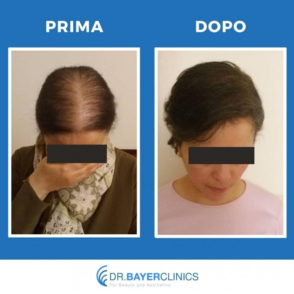 Trapianto capelli in Turchia 18