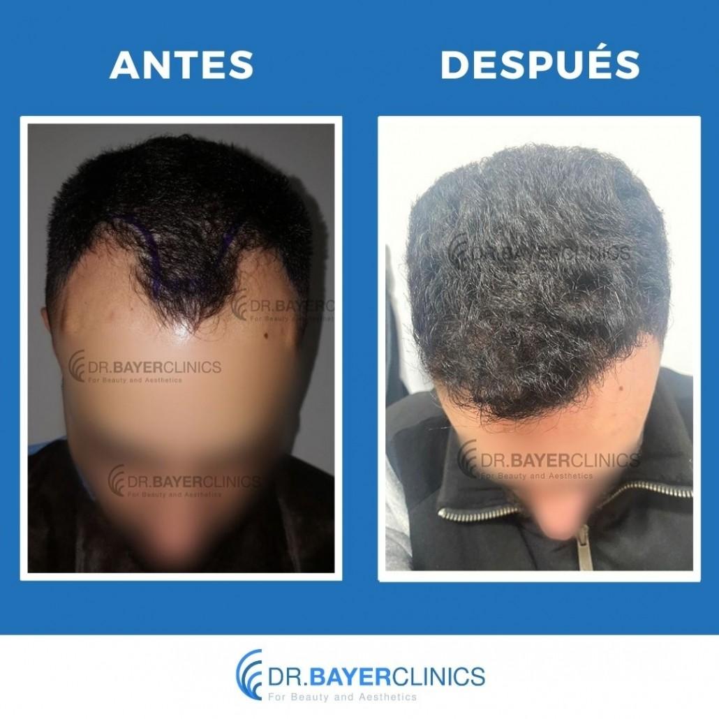 trasplante de cabello antes y después de 3000 injertos