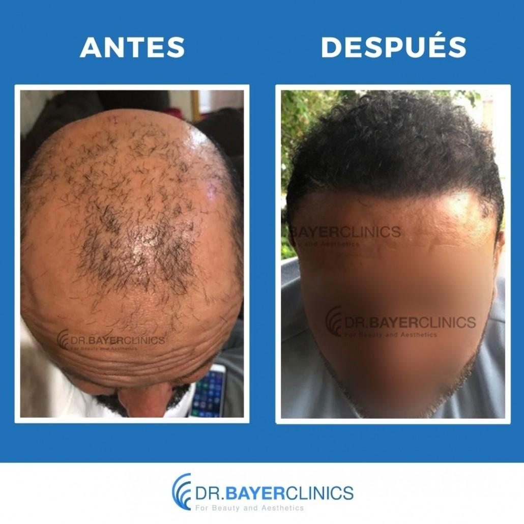 trasplante de cabello antes y después de 5000 injertos
