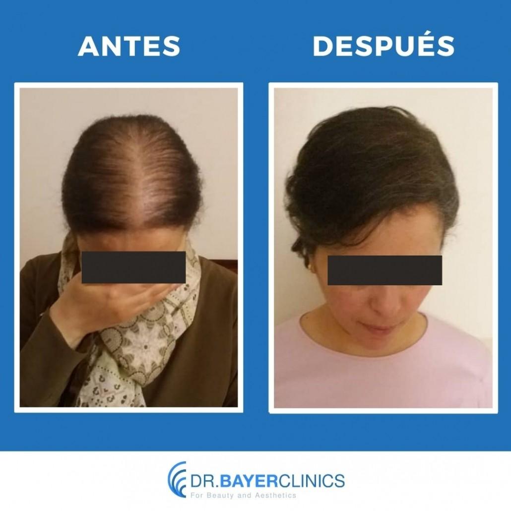 trasplante de cabello antes y después de la mujer