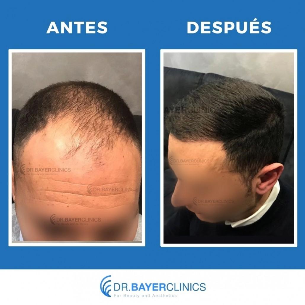 trasplante de cabello antes y después del hombre