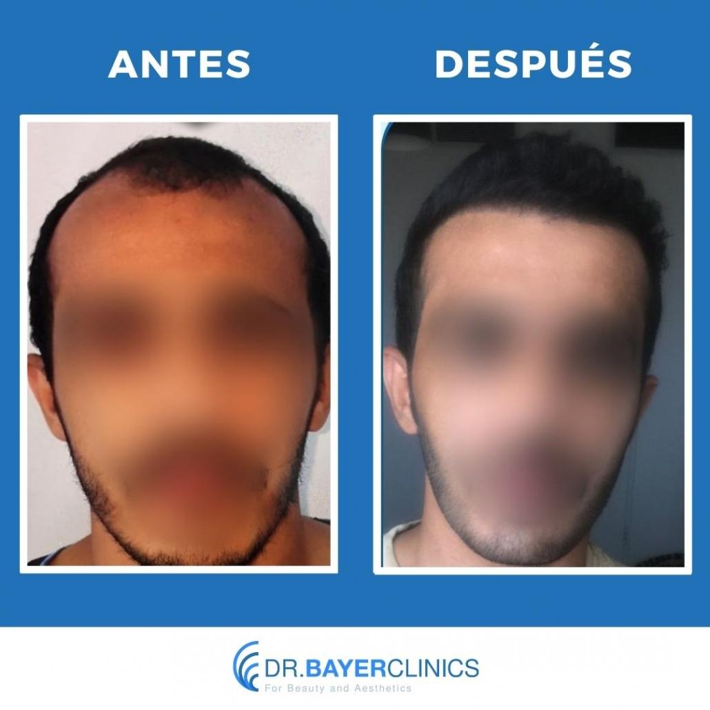 trasplante de cabello retroceso de la línea del cabello antes y después